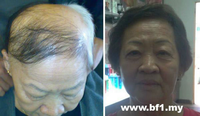 You can see the results within 7 days. Please take your hair photo from top, front and both side before use, retake again after 7 days usage, you will see immediate improvement from the top of your scalp.