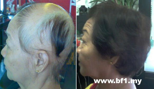 Please take your hair photo from top, front and both side before use the hair growth products, retake again after 7 days usage of hair growth products, you will see immediate improvement hair growth from the top of your scalp.
